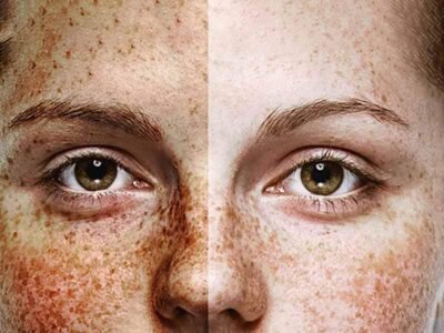 Sun Damage in Face - Before and after
